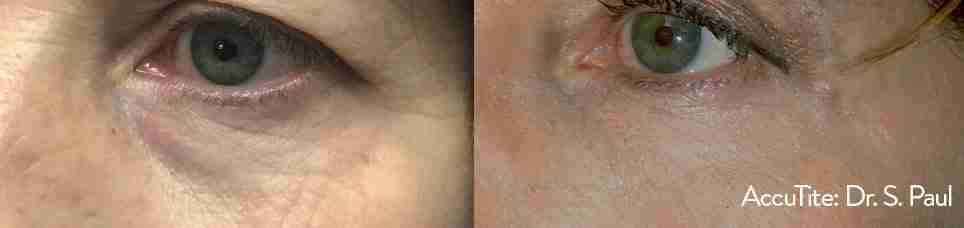 Accutite – Non Surgical Eyelid Lift, Dr. Aaron Stanes | Anti Ageing and Cosmetic Medicine