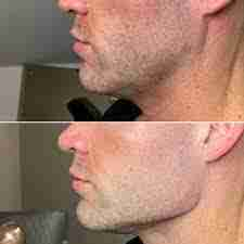 Jawline, Dr. Aaron Stanes | Anti Ageing and Cosmetic Medicine