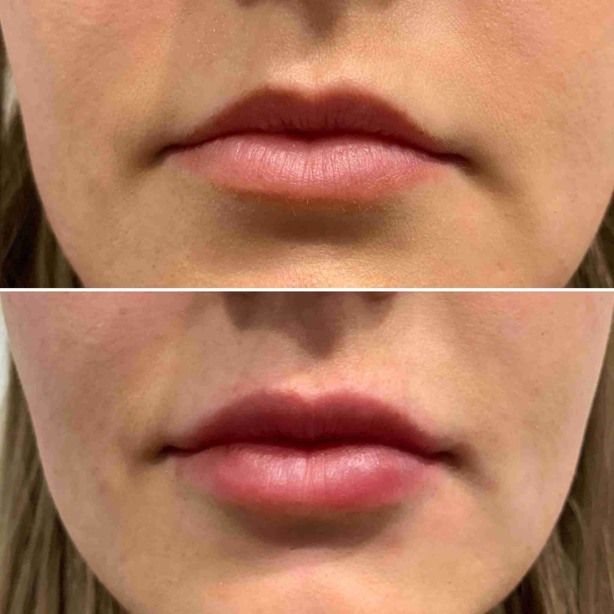 Lip Enhancement, Dr. Aaron Stanes | Anti Ageing and Cosmetic Medicine