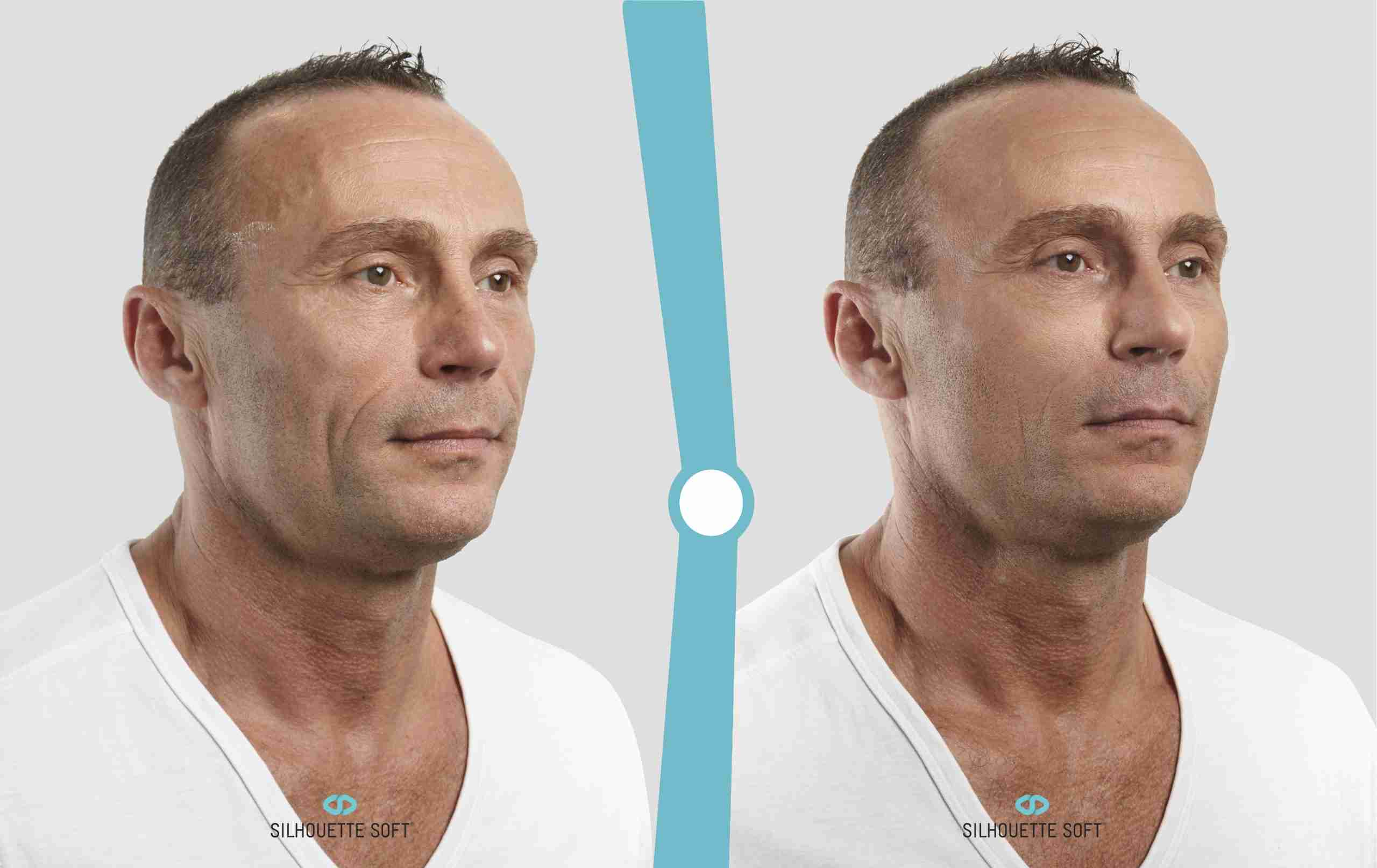 Sagging Skin, Dr. Aaron Stanes | Anti Ageing and Cosmetic Medicine
