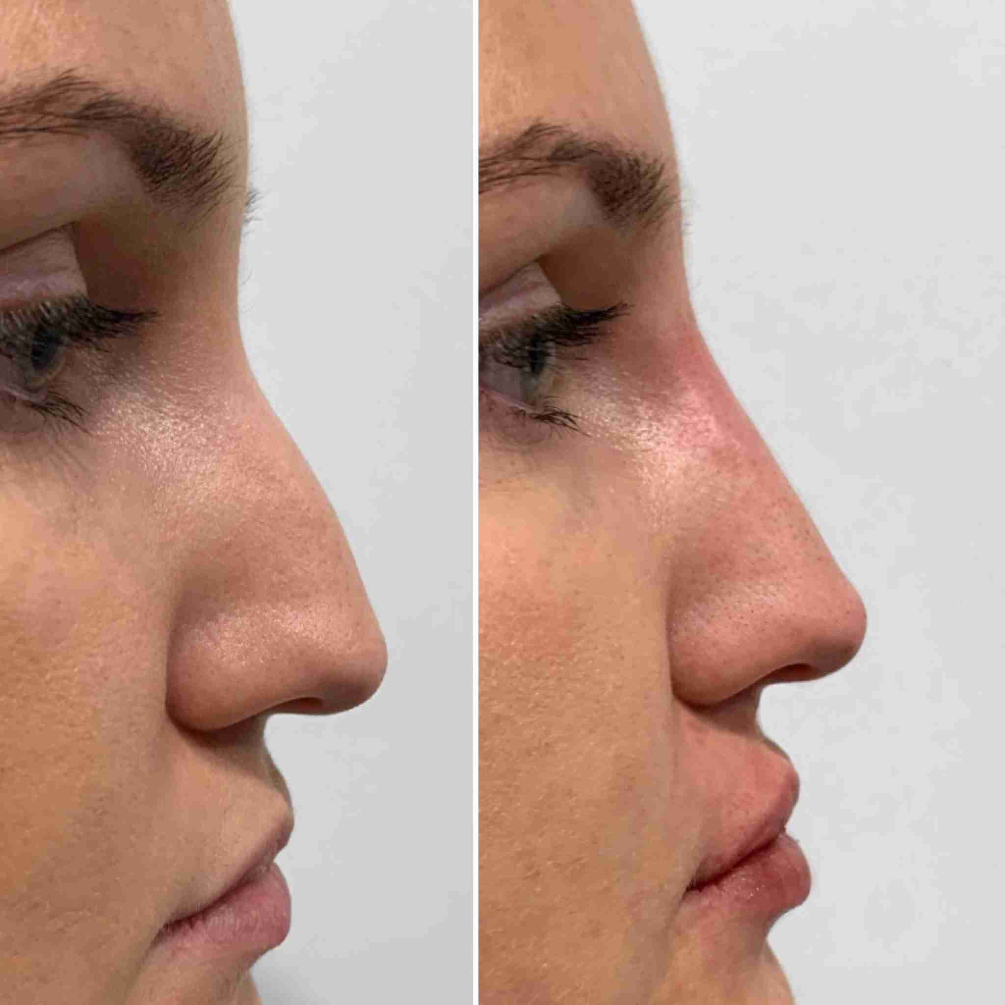Nose Fillers, Dr. Aaron Stanes | Anti Ageing and Cosmetic Medicine