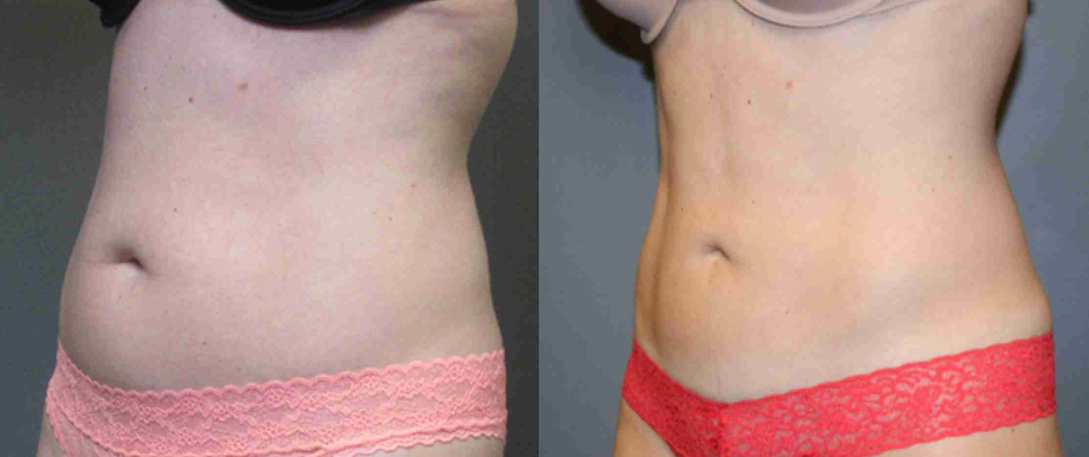 , Radiofrequency Assisted Liposuction, Dr. Aaron Stanes | Anti Ageing and Cosmetic Medicine